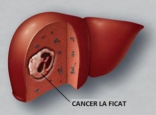 Program pentru persoanele cu cancer la ficat